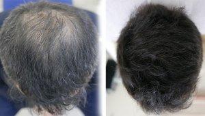 Saç nakli tarihe karışıyor