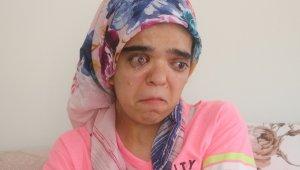 21 yaşındaki genç kız, güzelliğine kavuşmak için yardım bekliyor